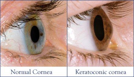 keratoconus loughton